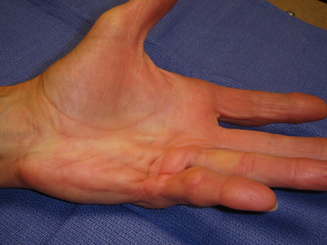 Figure 1a: Patient had interconnected central ring/little and little finger abductor cord, both with MP contractures.