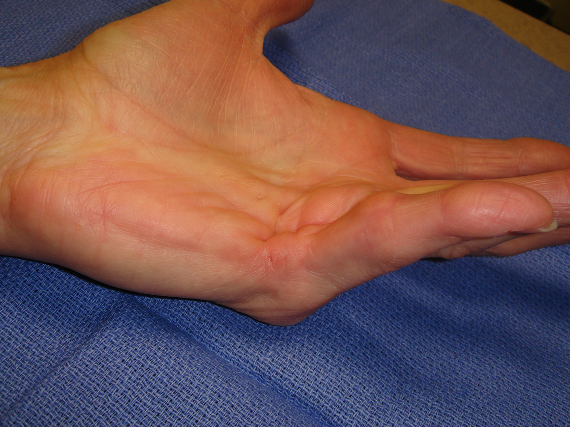 Figure 1b: Patient had interconnected central ring/little and little finger abductor cord, both with MP contractures.