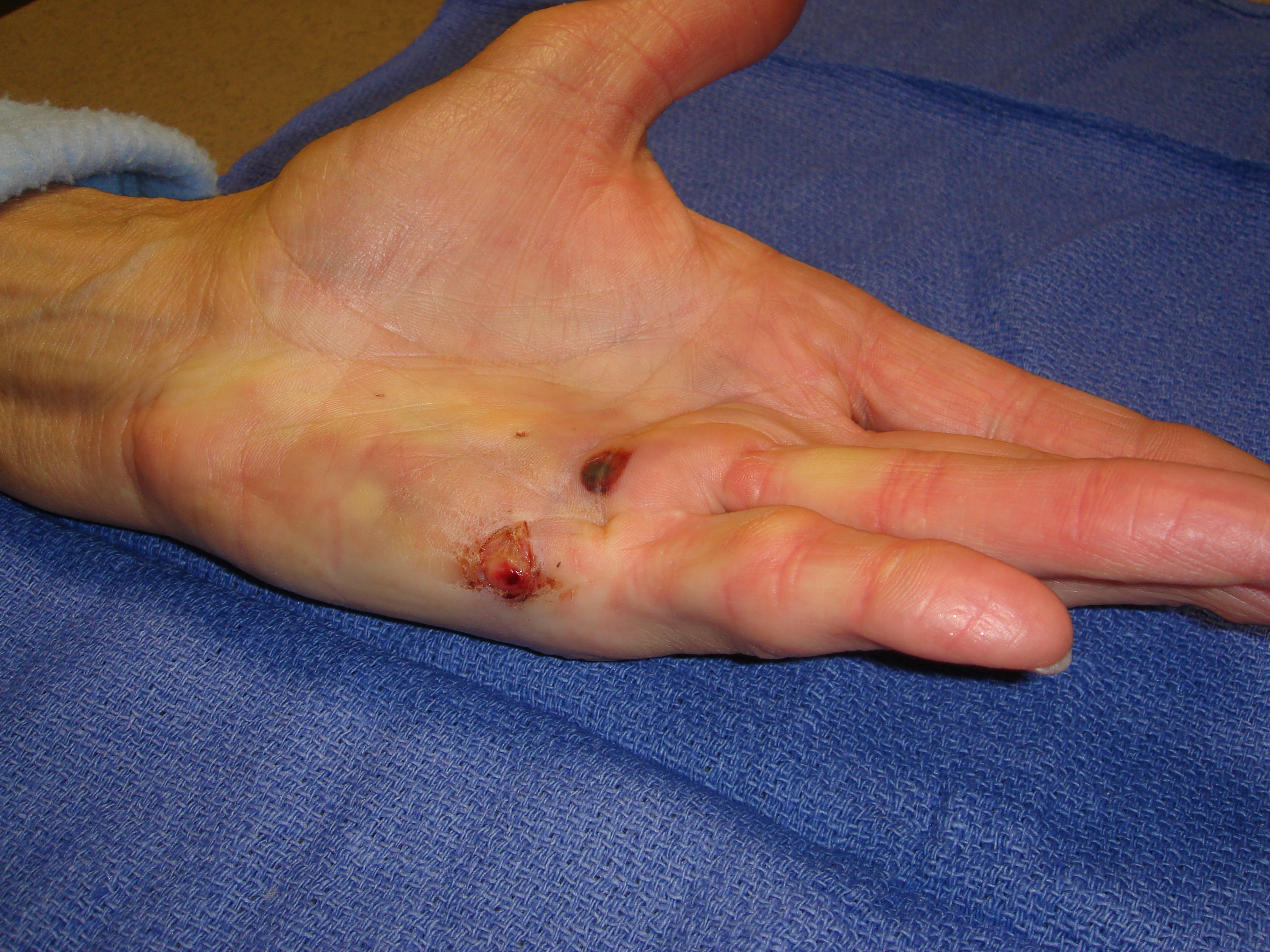 Figure 1c: The hand at 7 and 31 days post-injection; patient has been using a nighttime extension splint