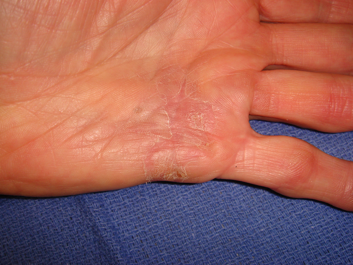Figure 1d: The hand at 7 and 31 days post-injection; patient has been using a nighttime extension splint