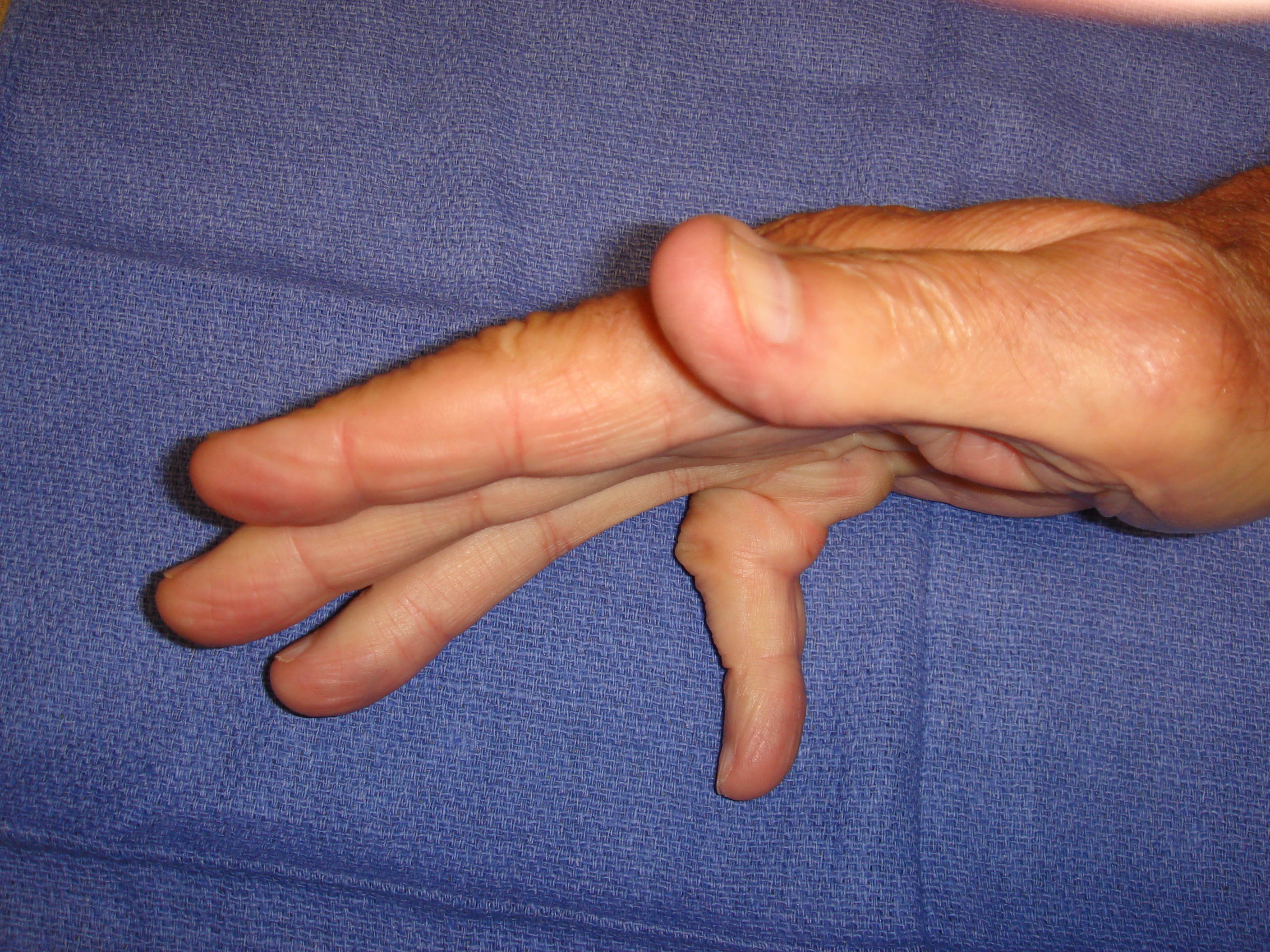 Figure 2b: This patient had a combined little finger MP and PIP contracture plus a Y-cord (natatory cord) into the ring finger.