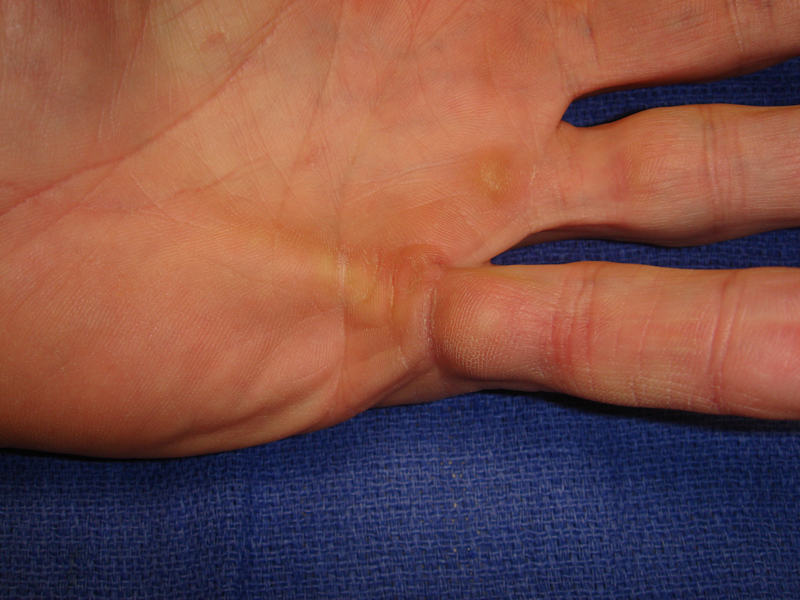 Figure 3a: This 46-year-old man has a strong family history of Dupuytren's disease but without ectopic sites. There is contracture of the left fifth ray from a central cord.
