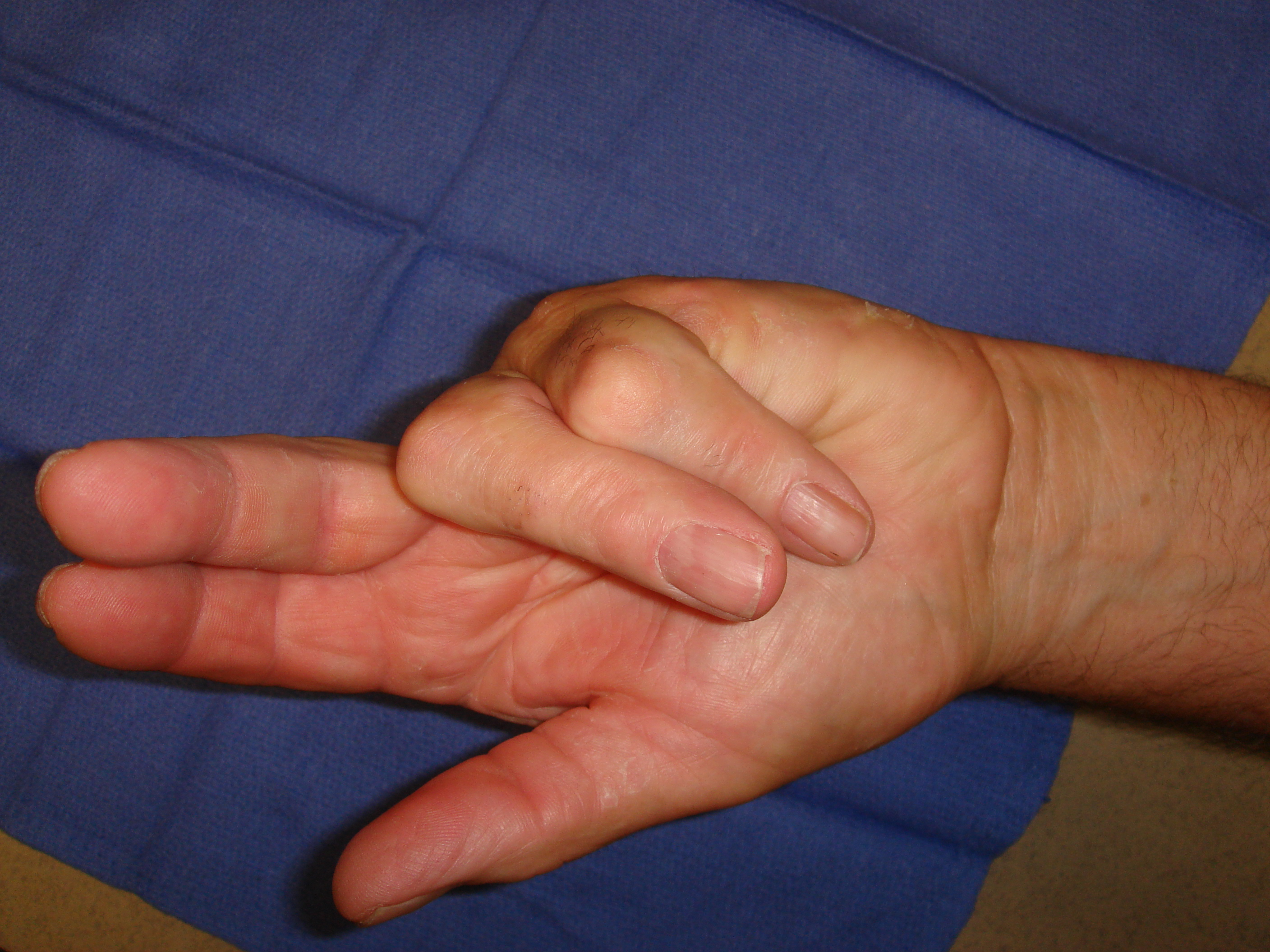 Figure 6b: This patient has advanced post-surgical recurrence of Dupuytren's contracture affecting his left ring and little fingers. There is very limited active and passive ROM. The patient refused to have surgery again, despite dysfunction, but sought collagenase on the advice of a friend who was treated with CCH. Identifiable, palpable cords are present in addition to scar tissue; ultimately, more than 1 treatment cycle was going to be required; treatment started with the little finger.