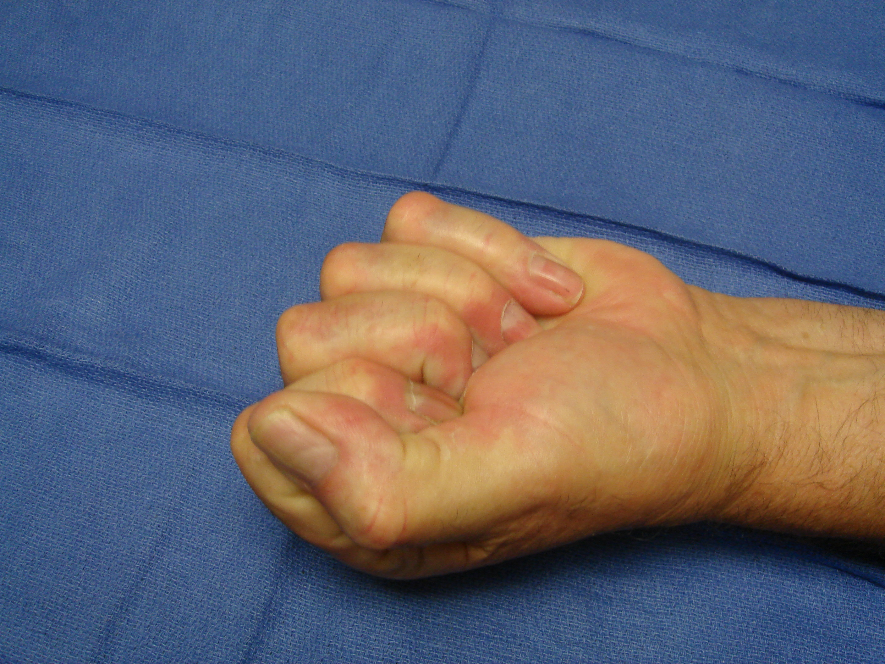 Figure 6c: This patient has advanced post-surgical recurrence of Dupuytren's contracture affecting his left ring and little fingers. There is very limited active and passive ROM. The patient refused to have surgery again, despite dysfunction, but sought collagenase on the advice of a friend who was treated with CCH. Identifiable, palpable cords are present in addition to scar tissue; ultimately, more than 1 treatment cycle was going to be required; treatment started with the little finger.