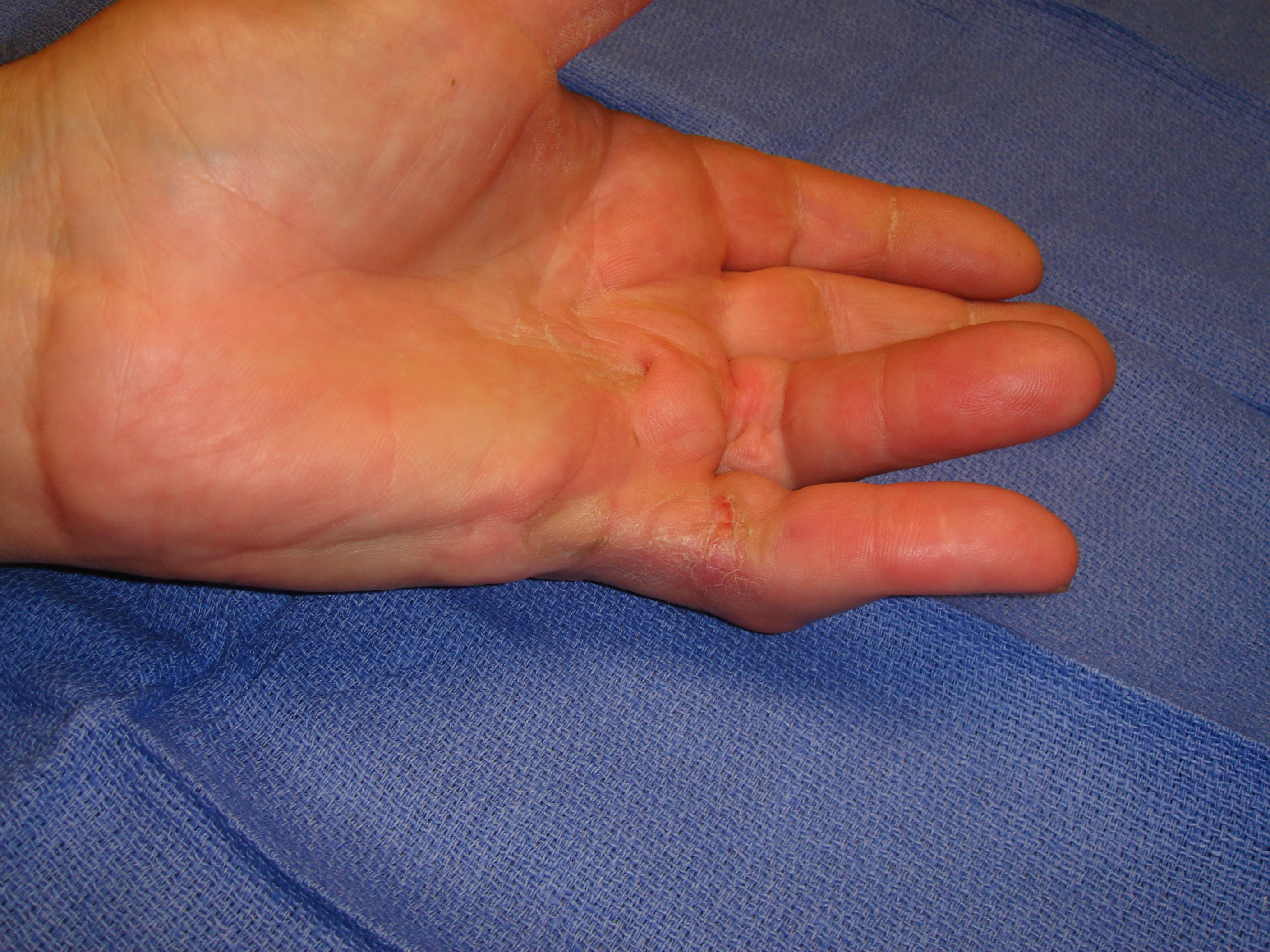Figure 6h: Two months post-manipulation, the skin tear is healed. He has useful but incomplete MP and PIP motion after enzyme correction of the contractures. Limited little finger distal interphalangeal (DIP) joint flexion from osteoarthritis is evident with active grip.