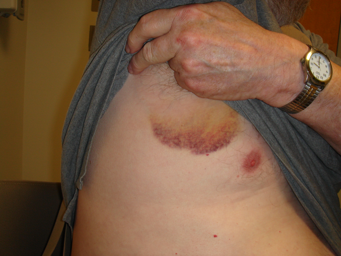 Figure 7c: At the 48-hour visit his right hand is minimally swollen; however, he also has mildly uncomfortable axillary bruising with enlarged nodes.