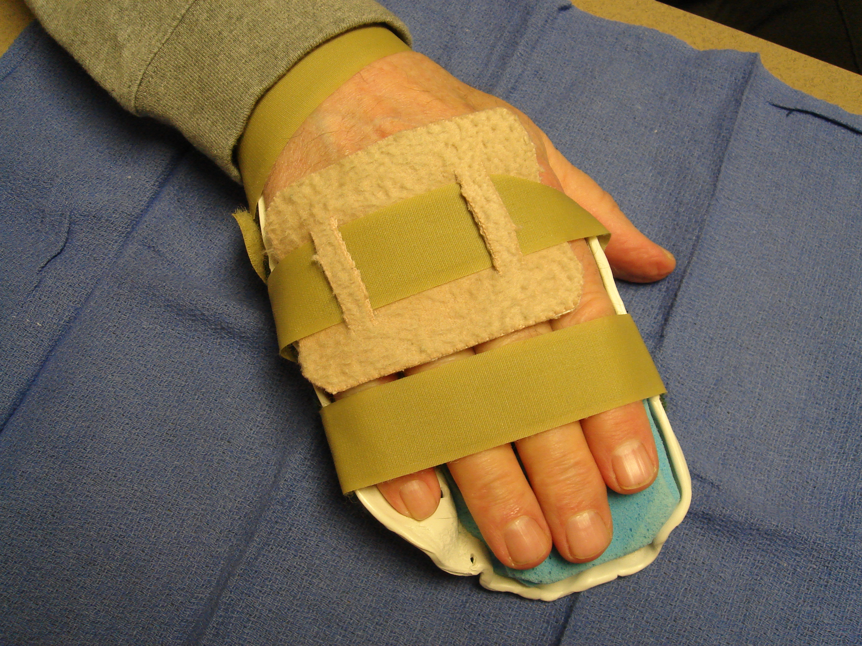 Figure 7f: Two weeks after little finger manipulation the proximal phalangeal/PIP skin tear is healing. He wore this static hand-based extension splint nightly during the next 3 months.