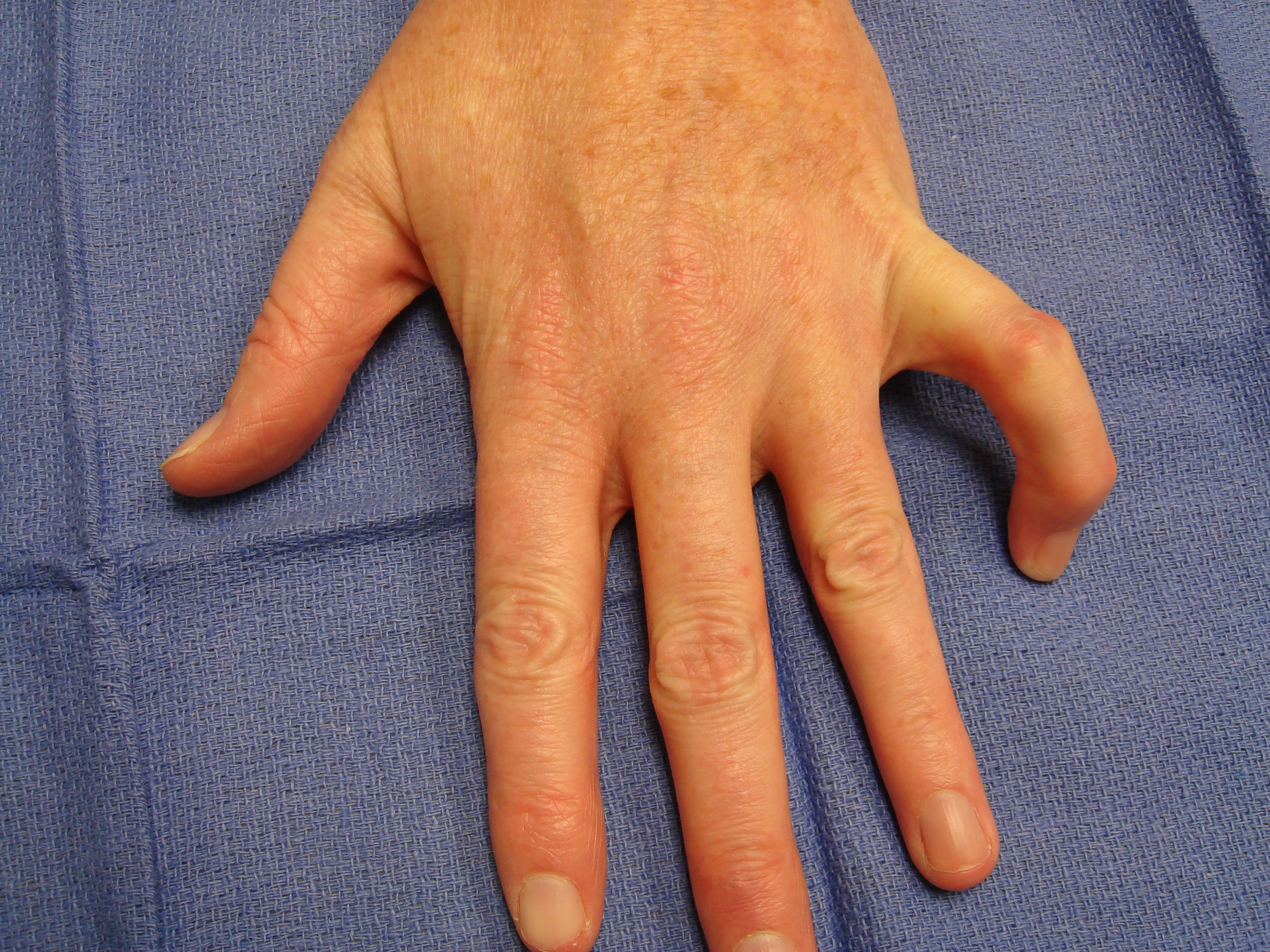 "Figure 8a: These images show a woman in her mid-50s with a significant, little-finger, combined (contiguous cord) PIP and DIP contracture. The MP joint was not affected. The injection and manipulation videos depict custom adaptation of the ""safe technique"" for such an unusual cases."