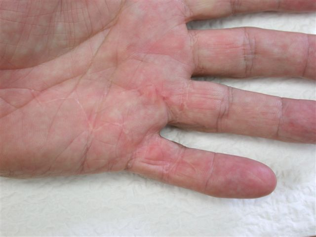 Figures 14b: Patients treated with the open wound technique showing fine scars at follow-up