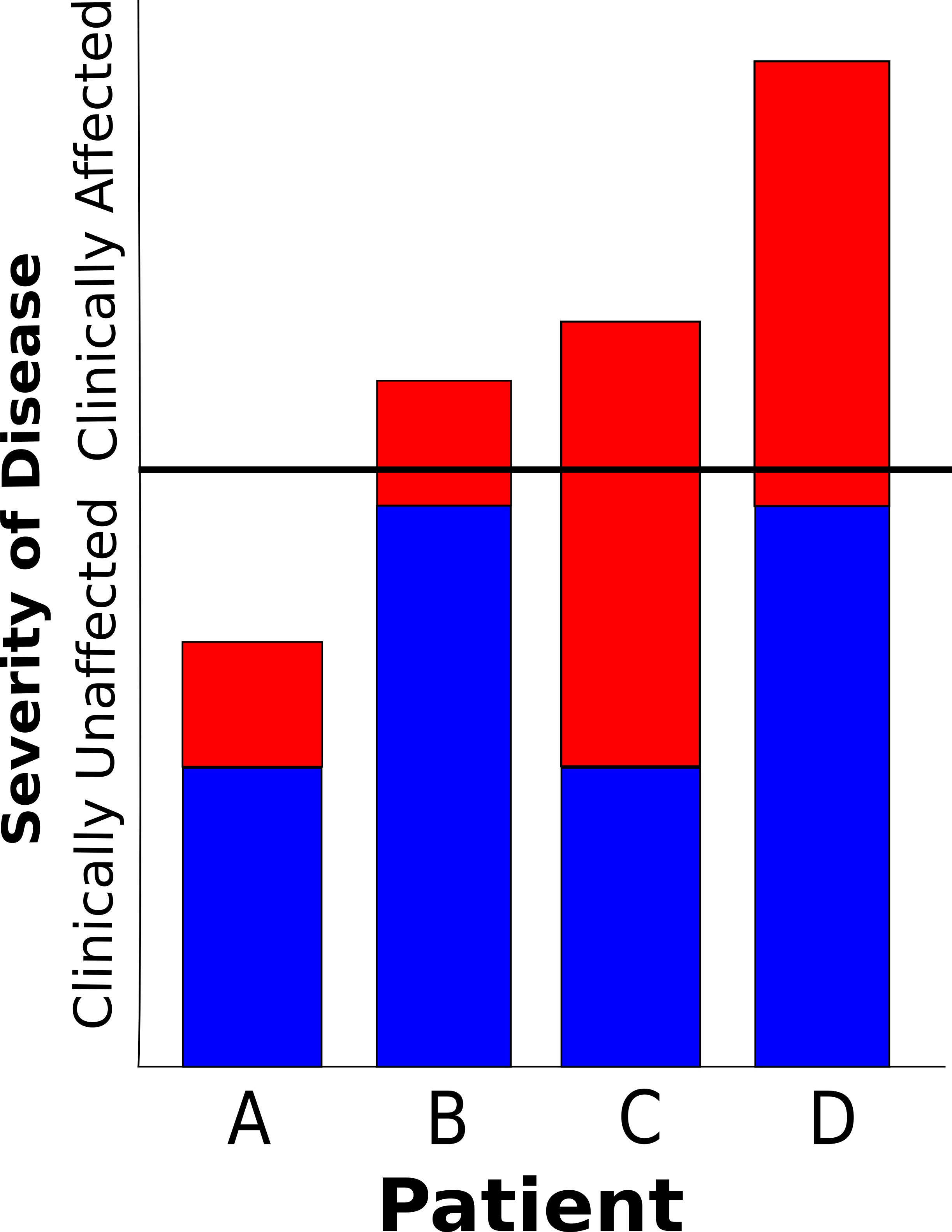 Figure 2: The threshold model of genetic predisposition to complex disease. Blue boxes represent genetic predisposition, and red boxes represent environmental predisposition. The horizontal black line represents a threshold, below which the individual is clinically unaffected. Patient A has a low genetic predisposition and low environmental exposure, and does not have the disease. Patient B has a large genetic predisposition, and a low environmental exposure is enough for them to exceed the threshold and be clinically affected. Patient C has a low genetic predisposition, but a large environmental exposure, and is also clinically affected. Finally, Patient D has a large genetic and environmental exposure, and is more severely affected.